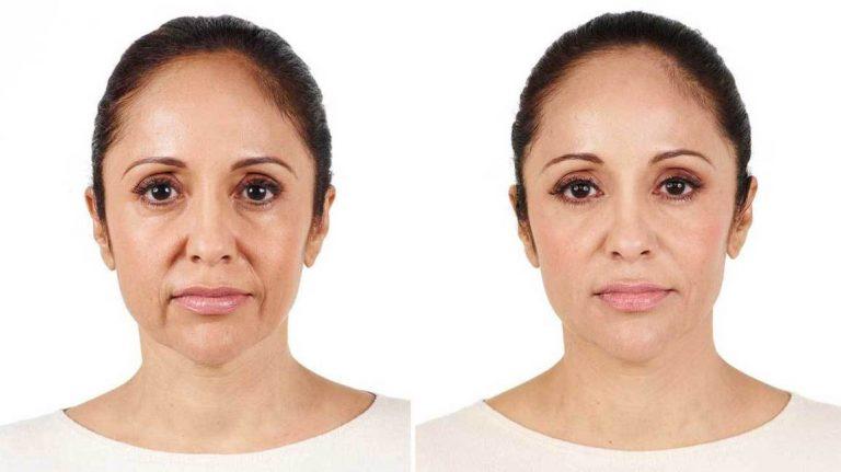 Radiesse Dermal Filler Wrinkle Treatment